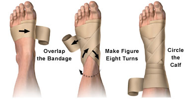 splints and braces for adventure first aid